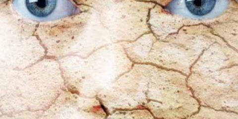 پوست خشک 480x240 - با پوست خشک ام چه کنم؟ (1)