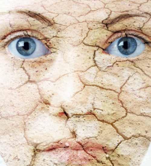 پوست خشک - با پوست خشک ام چه کنم؟ (1)