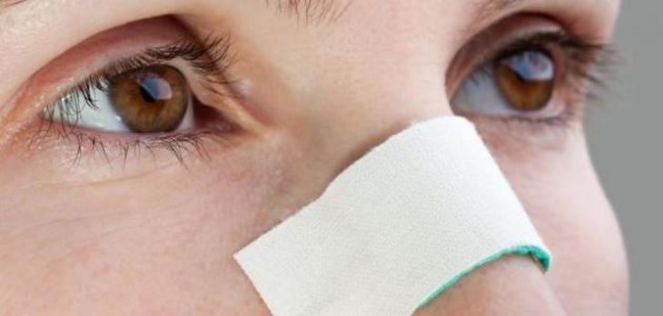 چچچچ - چرا میزان نارضایتی سالمندان از جراحی بینی زیاد است؟