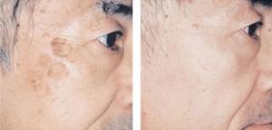 brown spots using medlite q switched laser before and after l 300x144 - با لیزر درمانی کیو سوئیچ، پوستتان را در آغوش بکشید