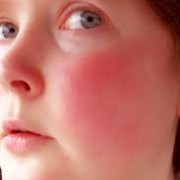 ژل موضعی پرمترین و اثر آن در درمان روزاسه