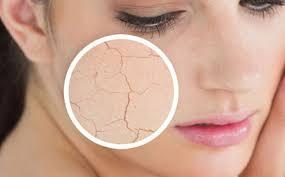 پوست شکننده و یا نازک