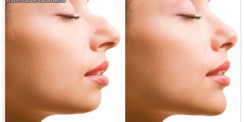 nose job simulator 480x240 - فقط در ده دقیقه فرم بینی ت رو عوض کن