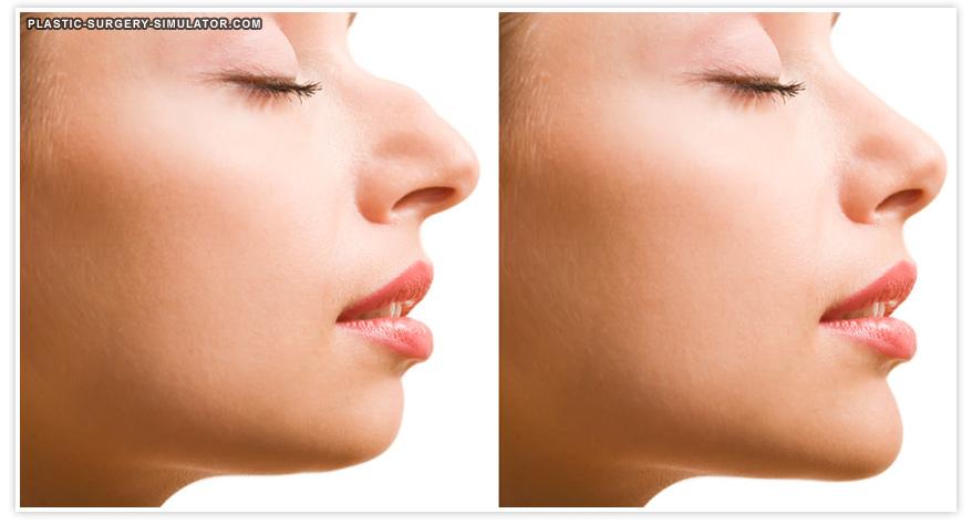 nose job simulator - فقط در ده دقیقه فرم بینی ت رو عوض کن