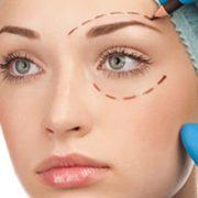 الفاغتعنه 180x180 - جراحی زیبایی پلک به روایت تصویر!