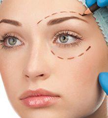 الفاغتعنه 220x240 - جراحی زیبایی پلک به روایت تصویر!