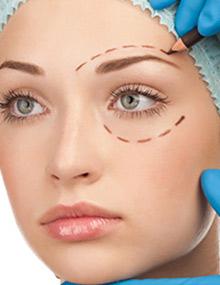 الفاغتعنه - جراحی زیبایی پلک به روایت تصویر!