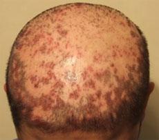 %D8%B1%D8%A8%D8%A8%DB%8C%D8%A8 - پوست اسکاری و کاشت مو!