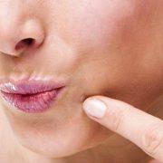 ززی 180x180 - ویروس HPV و زگیل های مسری!