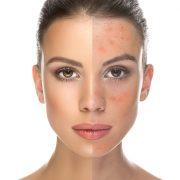 عالذ 180x180 - بیماری هایی که پوستمان را قرمز می کند!