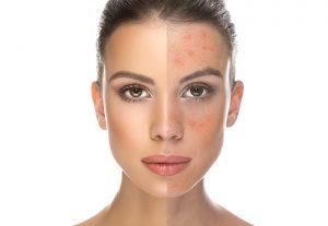 عالذ 300x207 - بیماری هایی که پوستمان را قرمز می کند!