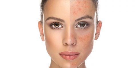 عالذ 480x240 - بیماری هایی که پوستمان را قرمز می کند!