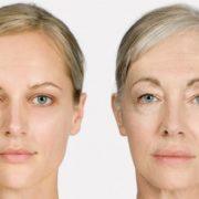لیز 180x180 - لیپولیز در زنان تازه زایمان کرده تا مادر بزرگ ها!