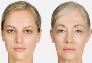 لیز 300x205 - لیپولیز در زنان تازه زایمان کرده تا مادر بزرگ ها!