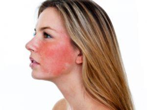 300x225 - بیماری هایی که پوستمان را قرمز می کند!