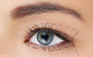 یثبثق 300x185 - جراحی زیبایی پلک به روایت تصویر!