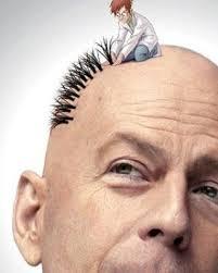 بسلقیا - کاشت مو و هر آنچه باید دانست!