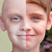 بفلاغتن 180x180 - سرطان و روش های درمانی آن کدامند؟