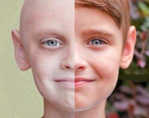 بفلاغتن 300x237 - سرطان و روش های درمانی آن کدامند؟