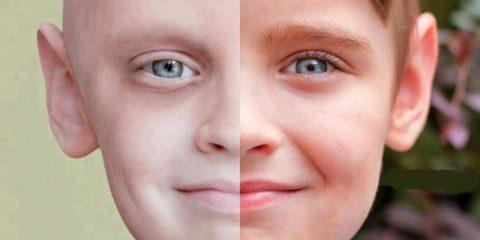 بفلاغتن 480x240 - سرطان و روش های درمانی آن کدامند؟