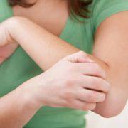 ذرلدائ 180x180 - چرا پوستمان دچار خارش میشود؟