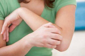 ذرلدائ 300x197 - چرا پوستمان دچار خارش میشود؟