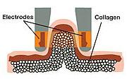 aluma02 - روبولکس دستگاهی منحصر به فرد برای فرم دهی به صورت و بدن