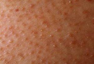 1 16 300x204 - درباره بیماری پوست مرغی چه می دانید؟!