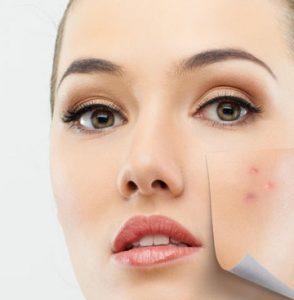 4 3 294x300 - جوانسازی پوست و آنچه باید در اینباره بدانید!