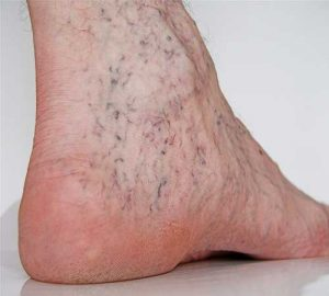 5 2 300x270 - جوانسازی پوست و آنچه باید در اینباره بدانید!