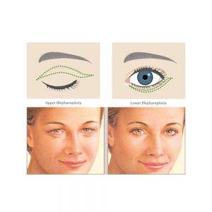 Eyelid Surgery Diagram 02 300x300 - هر آنچه که باید درباره پف زیر چشم بدانید