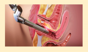 FemiProcedure 300x179 - با جراحی واژینوپلاستی و لابیاپلاستی آشنا شوید