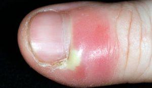 Paronychia infection 342x198 C0111661 300x174 - درباره مانیکور چه میدانید؟