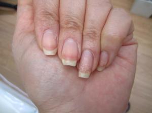 dry nails remedy 300x224 - درباره مانیکور چه میدانید؟