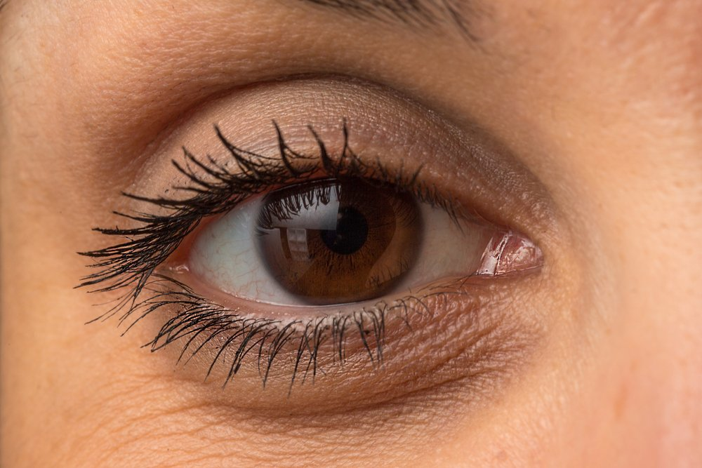 eye bags - چطور میشه از شر پف زیر چشم خلاص شد؟