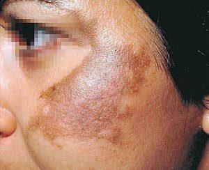 f8babe47dff7b81ff58210e268b3cf53 300x244 - جوانسازی پوست و آنچه باید در اینباره بدانید!