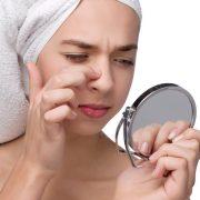 how to get rid of blackhead fast home remedies 180x180 - چطور از شر جوش های سر سیاه خلاص شوم؟!