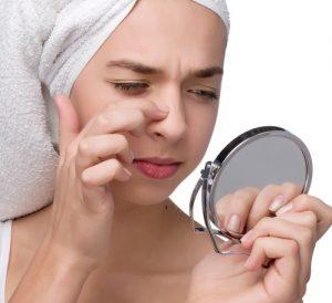 how to get rid of blackhead fast home remedies 300x274 - چطور از شر جوش های سر سیاه خلاص شوم؟!