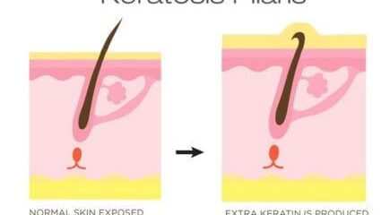 keratosis pilaris diagram pathology image 435x240 - درباره بیماری پوست مرغی چه می دانید؟!