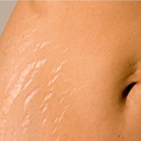 stretchmarks - چطور میشه ترک های پوستی رو از بین برد؟ + فیلم