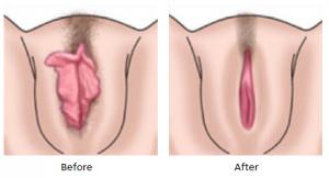 vgnplst2 en 300x162 - با جراحی واژینوپلاستی و لابیاپلاستی آشنا شوید