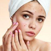 Teenage Hormonal Acne 180x180 - آکنه در نوجوانان: چه زمانی برای مراجعه به پزشک مناسب است؟