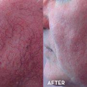get rid of stubborn spider neins on face 500x260 180x180 - روش هایی جهت درمان و از بین بردن واریس صورت