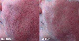 get rid of stubborn spider neins on face 500x260 300x156 - روش هایی جهت درمان و از بین بردن واریس صورت