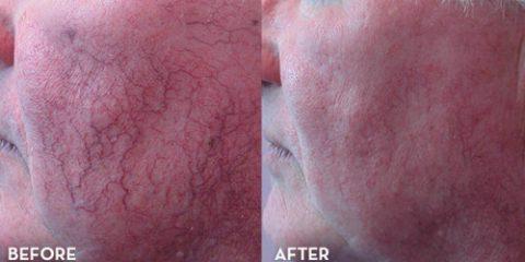 get rid of stubborn spider neins on face 500x260 480x240 - روش هایی جهت درمان و از بین بردن واریس صورت