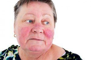 img what causes varicose veins on the face 12214 600 300x200 - علت واریس صورت چیست؟!