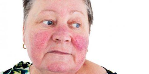 img what causes varicose veins on the face 12214 600 480x240 - علت واریس صورت چیست؟!