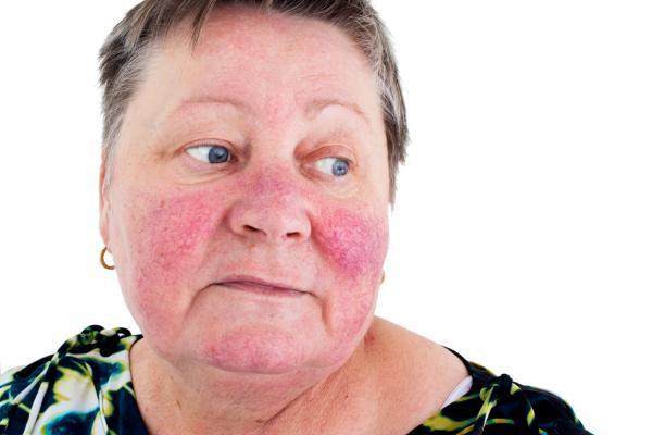 img what causes varicose veins on the face 12214 600 - 10 نکته مهم که چه مبتلا باشید، چه نباشید باید درباره روزاسه بدانید!