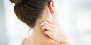 landscape 1498646923 eczema 300x150 - اگزما و پاسخ به سوالات متداول شما در این باره