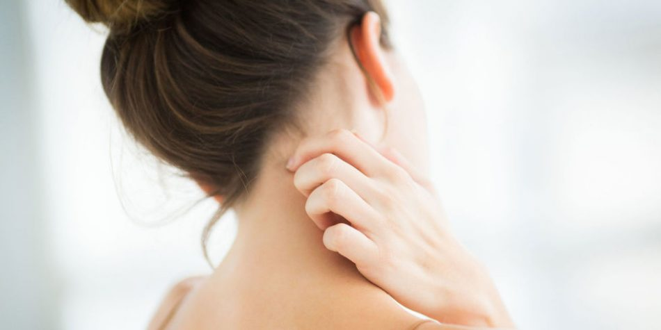 landscape 1498646923 eczema 950x475 - اگزما و پاسخ به سوالات متداول شما در این باره